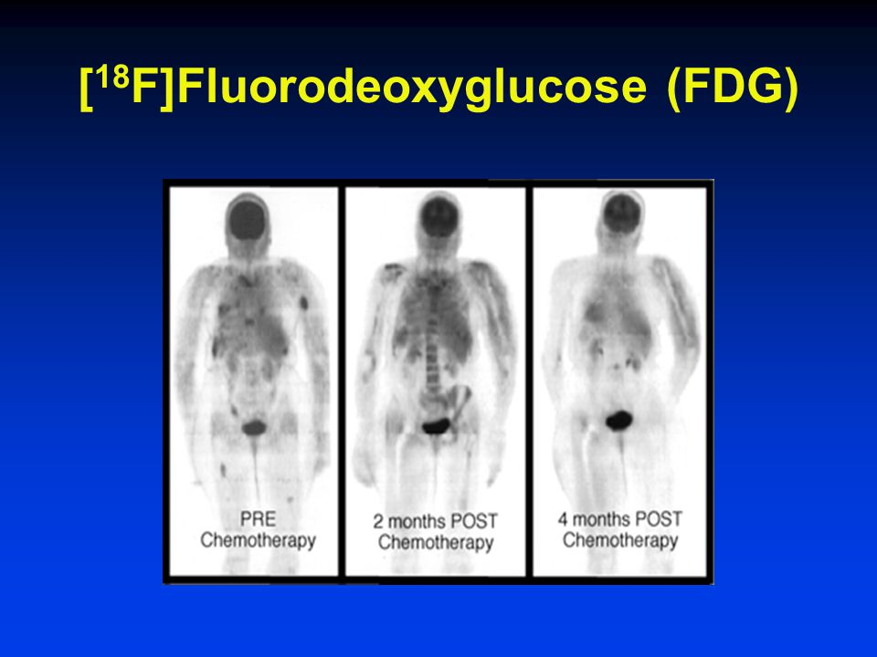 [18F]Fluorodeoxyglucose (FDG)